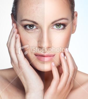 Les taches de pigment sur le corps le traitement avec les médicaments