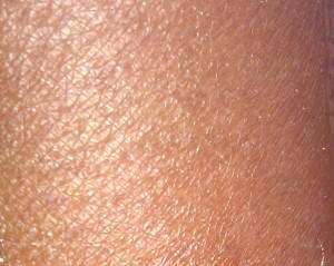 Caractéristique des peaux sèches